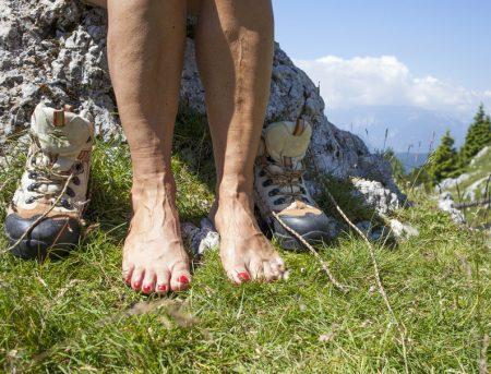 ноги женщины с отёками и варикозом