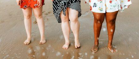 отёки ног с лимфостазом и варикозом